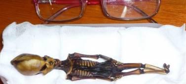«Σοκάρει» ο ανθρώπινος σκελετός των 15 εκ.